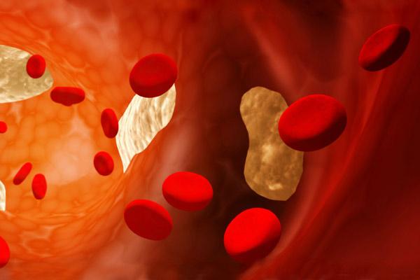Bajar colesterol en sangre